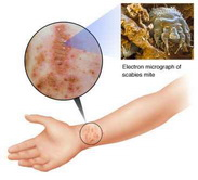 scabies tips